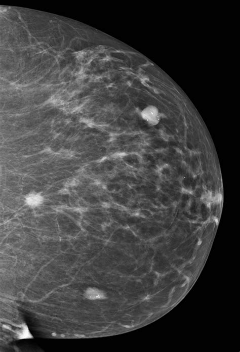 breast leasions png 591x869