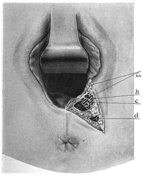 Is it possible that my vagina is just too small could it png 434x538